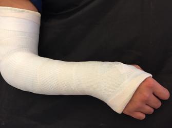 リハビリ通信8 橈骨遠位端骨折 | 京命クリニック
